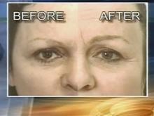 Follicle Transplant Can Restore Eyebrow Hair Loss