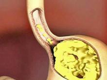 Cure Heartburn Alcohol Intolerance