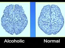 Medication + Counseling Can Help Alcoholics