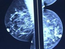 Health Officials: BSGI Breast Cancer Scan is Easier, Less Expensive