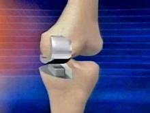 New Knee Surgery Gets Patient Moving Again Faster