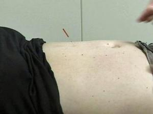 The Duke Fertility Clinic offers acupuncture treatments.