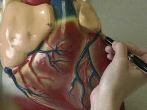 In cardiac catheterization a doctor inserts a thin plastic tube into an artery or vein in the arm or leg. The tube can then be moved the chambers of the heart or into the coronary arteries, according to the American Heart Association.