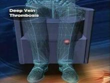 Procedure can eliminate blood clots