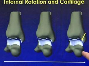 Duke University Medical Center orthopedic surgeon Dr. James Nunley use the latest in X-rays and magnetic resonance imaging (MRI) to look at the mechanics of injured ankle joints.