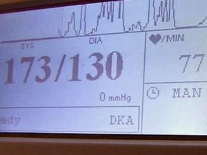 A Duke University test monitors changes in blood pressure to measure the impact of daily stress on a patient's heart.