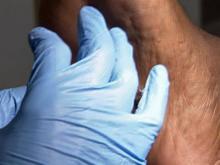 Black people also at risk for skin cancer