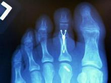 Hammertoes corrected by surgical implants