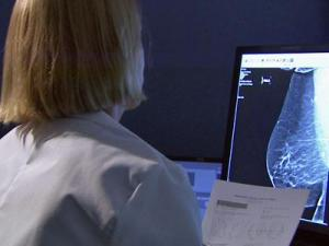 The U.S. Preventive Services Task Force recommends no mammogram screening for women between the ages of 40 to 49.