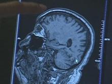 Long-term study identifies healthy brain marker