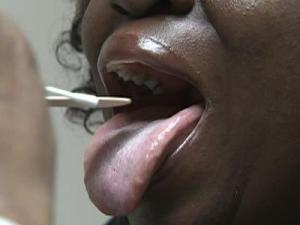 Complications of untreated strep throat include rheumatic fever.