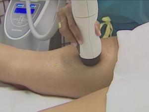 Reaction, a technology that was recently approved by the Food and Drug Administration, is the first device that combines existing therapies to treat cellulite and fat and to tighten the skin.