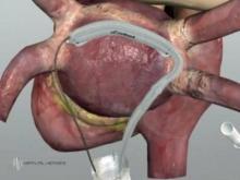 N.C. State develops robotic catheter