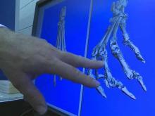 UNC space-shuttle experiment tackles bone loss