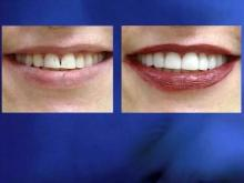 Say cheese: Gum lift produces bigger smiles