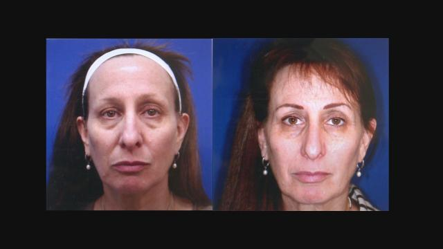 This before-and-after comparison shows patient Robin Dubois after nonsurgical skin treatments.