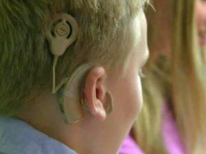 Parker Shoun has cochlear implants to help him hear.