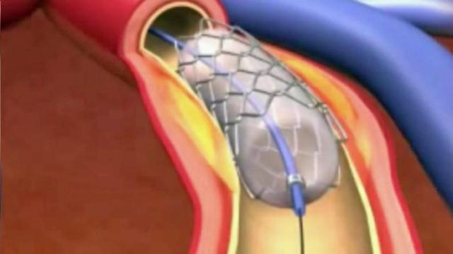 Arthrectomy