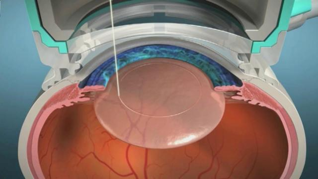 Cataract patients find benefit in laser surgery