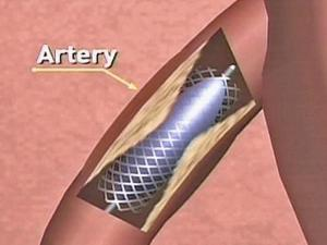 Stenting Can Be Beneficial for Some Heart Patients