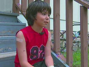 Talon Thomas said he was attacked by the fox while walking home from school in Aberdeen on Tuesday, June 8, 2010.