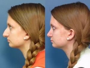Amy Arnold had surgery to change the shape of her nose.