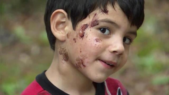 Dad accuses Fuquay-Varina daycare of injuring son while washing his face