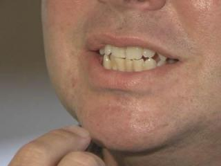 Brian Runsick had his teeth whitened at a BleachBright kiosk in Crabtree Valley Mall.