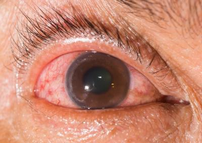GLAUCOMA: It has no symptoms in its early stage. It's often called the silent thief of sight, because you lose your peripheral vision fist. Half the people with it don't know they have it. (Deseret Photo)