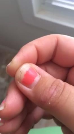Tiny Black Specks On Skin