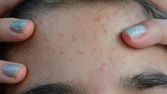 6 ways to get rid of pimples overnight :: WRAL com