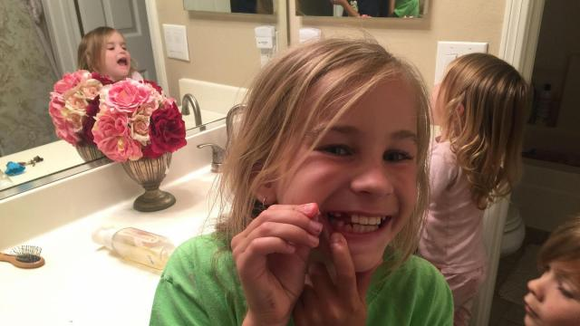 Johanna loses a tooth on Tuesday, May 3, 2016, in Orange County. What is the deal with the tooth fairy? (Deseret Photo)