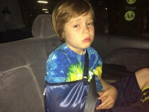 Julia Sims' son with his broken collar bone.