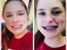 Amanda's younger daughter gets braces.