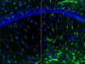 Credit: Left: Mary-Louise Risher/ Duke Medicine