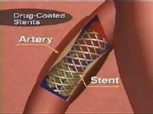 Studies show a small risk of blood clots forming inside drug-coated stents. A Food and Drug Administration advisory panel reviewed the research and said the benefits of the devices outweigh the safety concerns.