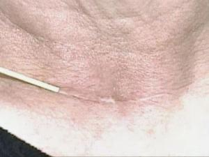 Botox Could Help Scars to Fade Away
