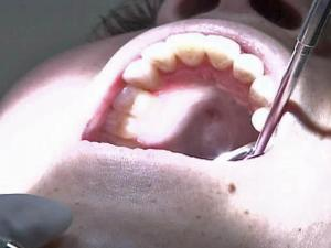 Palate Can Provide Tissue to Repair Gums