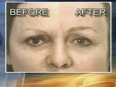 Because plucking eyebrows can stop hair growth in the area, follicle transplants are needed to to restart growth.