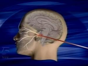 Doctors using laser-guided radiation can correct a condition in which nerves in the face send intense pain messages to the brain without cause.