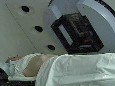 Radiation Treatment Targets Tumors