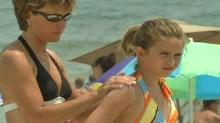 IMAGE: Dermatologists warn about sun damage on 'Don't Fry Day'