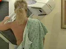 Fewer Mammograms May Decrease Breast Cancer Diagnoses