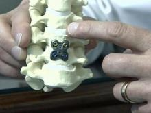 Artificial Disk Can Take Away Neck Pain, Restore Motion