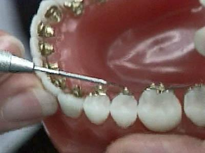 Smile! There's a Way to Hide Braces