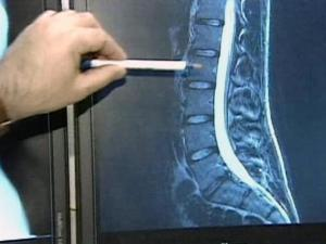 A new study shows that although fees for treating neck and back pain are skyrocketing, patients aren't necessarily feeling better.