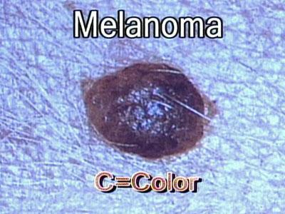 Melanoma is asymmetrical and the borders are irregular.