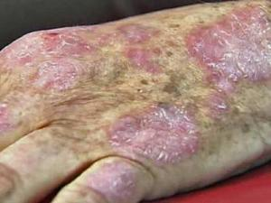 Duke University researchers are conducting trials to test out treatments for psoriasis, a painful, disfiguring skin disease that affects millions of Americans.