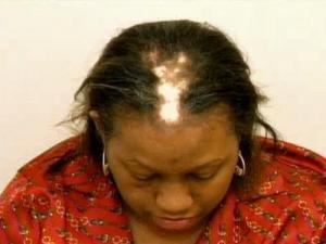Vonette Chisholm before she underwent hair restoration.