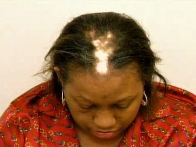 Vonette Chisholm before she underwent hair restoration.